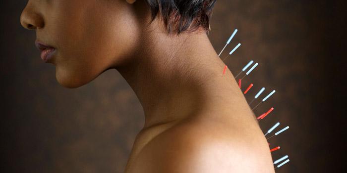 sports massage london acupuncture
